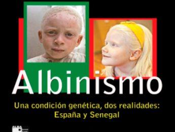 Imagen de la noticia Albinismo. Exposición