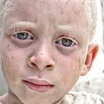 Imagen de la noticia Albinismo: exposición fotográfica y cortometraje